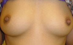 Inverted Nipple Before and After Photos NYC - After Image 1