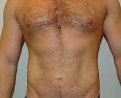 Liposuction Before and After Photos NYC - After Image 3