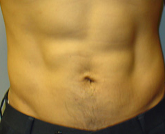 Liposuction Before and After Photos NYC - After Image 1