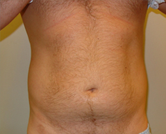 Liposuction Before and After Photos NYC - Before Image 3