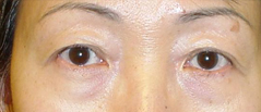 Eyelid Lift Surgery Before and After Photos NYC - Before Image 2