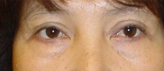 Eyelid Lift Surgery Before and After Photos NYC - Before Image 7