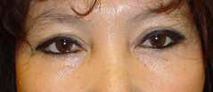 Eyelid Lift Surgery Before and After Photos NYC - After Image 7