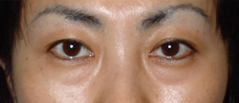 Eyelid Lift Surgery Before and After Photos NYC - Before Image 3