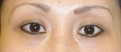 Eyelid Lift Surgery Before and After Photos NYC - After Image 4