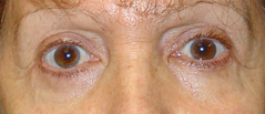 Eyelid Lift Surgery Before and After Photos NYC - After Image 5