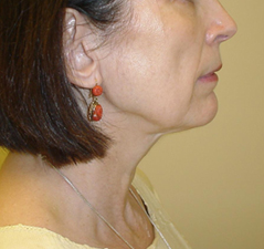 Neck Lift Before and After Photos NY - After Image 5