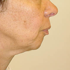 Neck Lift Before and After Photos NY - Before Image 4
