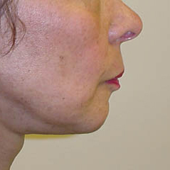 Neck Lift Before and After Photos NY - After Image 4