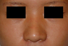 Dr. Edmund Kwan, Edmund Kwan M.D - Asian Nose Surgery Before Image 1