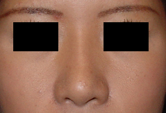 Asian Nose Surgery Before and After Photos NY - After Image 1