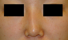 Dr. Edmund Kwan, Edmund Kwan M.D - Asian Nose Surgery Before Image 2