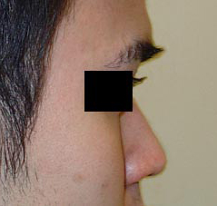 Non-Surgical Nose Procedure Before and After Photos NYC - Before Image 2
