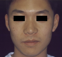 Dr. Edmund Kwan, Edmund Kwan M.D - Asian Nose Surgery Before Image 7
