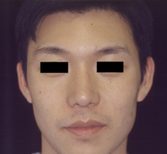Asian Nose Surgery Before and After Photos NY - After Image 7