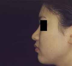 Dr. Edmund Kwan, Edmund Kwan M.D - Asian Nose Surgery Before Image 3
