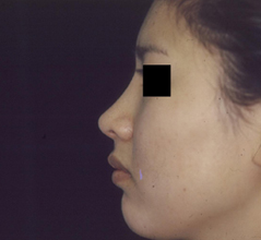 Dr. Edmund Kwan, Edmund Kwan M.D - Asian Nose Surgery After Image 3