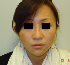 Dr. Edmund Kwan, Edmund Kwan M.D - Asian Nose Surgery After Image 5
