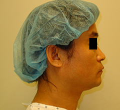 Asian Nose Surgery Before and After Photos NY - Before Image 6