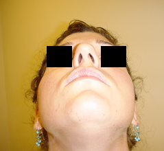 Nose Surgery Before and After Photos NYC - Before Image 3