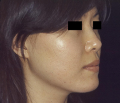 Profile Surgery Before and After Photos NYC - After Image 4