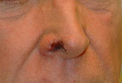 Reconstructive Surgery Before and After Photos NY - Before Image 7