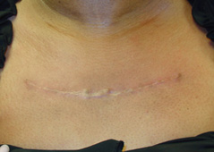 Scar Removal Before and After Photos NYC - After Image 1