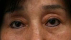 Eyelid Ptosis Surgery NYC - Repair Droopy Eyelid - After 2