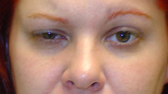 Eyelid Ptosis Surgery NYC - Repair Droopy Eyelid - Before 1