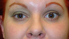 Eyelid Ptosis Surgery NYC - Repair Droopy Eyelid - After 1